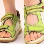 Как выбрать ортопедическую обувь для ребенка