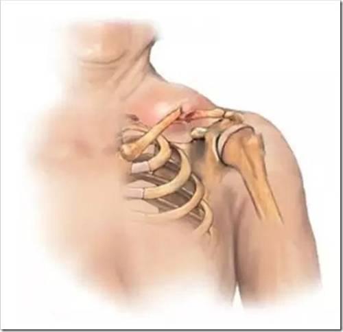 Виды лечения перелома ключицы