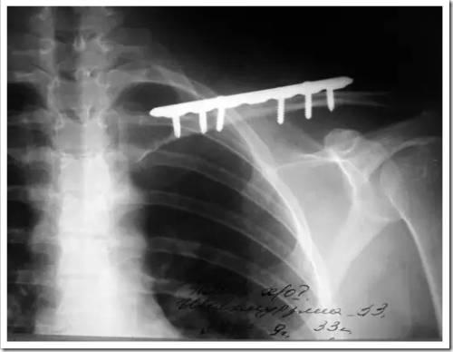 Как осуществляется лечение перелома ключицы при помощи операции?