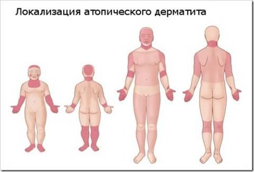 Атопический дерматит у пожилых