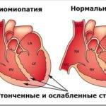 Влияние пьянства на сердце