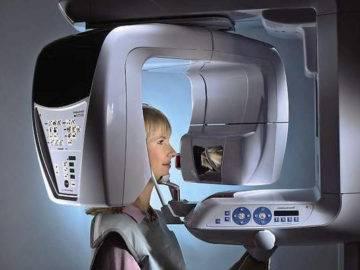 Компьютерная томография зубов – что это такое