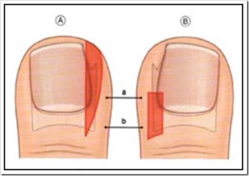 Плюсы частичного удаления вросшего ногтя