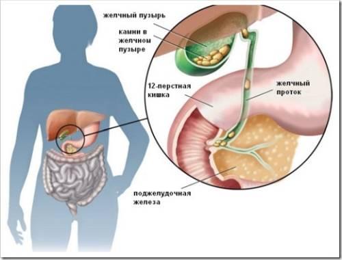 Основные симптомы ЖКБ (желчекаменной болезни)