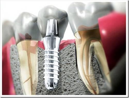 Что такое имплант и как его устанавливают?