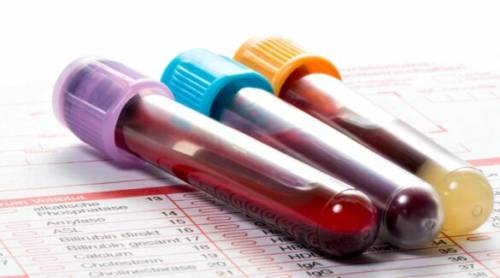 Какие анализы сдают на гормоны