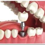Виды протезирования зубов: какой протез лучше