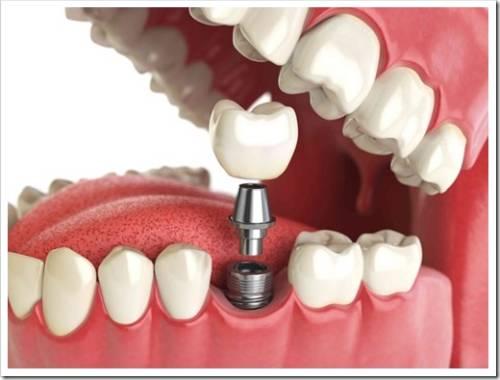 Зубные протезы, которые используются сегодня