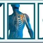 Что такое ортопедия и травматология