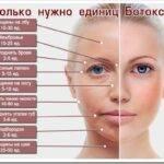 Виды препаратов ботулотоксина в косметологии