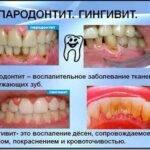 Какие болезни десен бывают