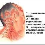 Симптомы как болит голова при шейном остеохондрозе