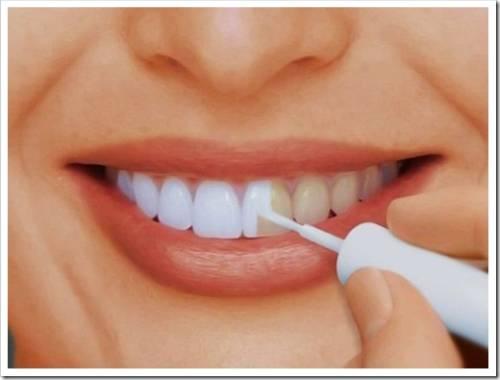 Самые востребованные виды отбеливания зубов в бытовых условиях