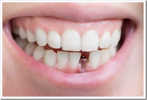 Без полноценного лечения зубов не обойтись