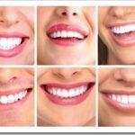 Эстетическая стоматология — что это и какие процедуры к ней относятся
