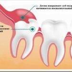 Как проходит удаление зуба мудрости