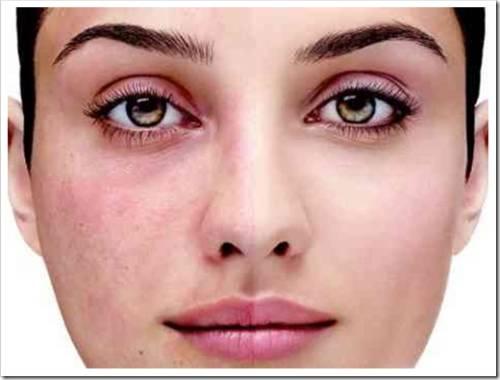 Рекомендованные косметические продукты для кожи с куперозом