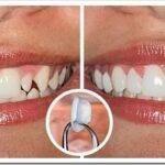 Люминиры на зубы — что это и чем отличаются от виниров