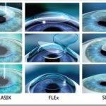 Где качественно делают лазерную коррекцию зрения?