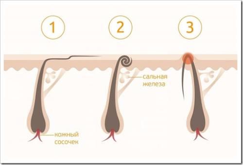 Как удалить вросший волос самостоятельно?