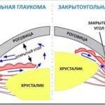Открытоугольная глаукома: особенности заболевания, его лечение